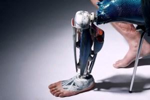 prosthetics6