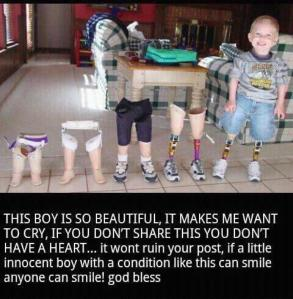 childprosthetic