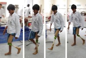 JaipurKnee-Project-cheap-prosthetic